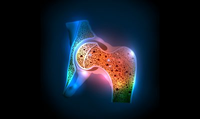 Osteoporosis Fact Sheet
