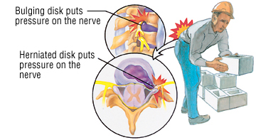 Disc injury can cause back pain