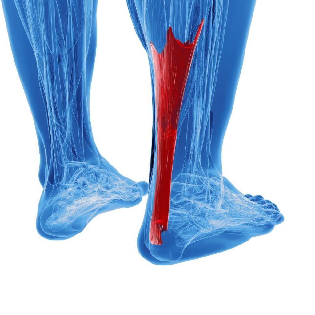 Calf pain? All you need to know about Achilles Tendinosis