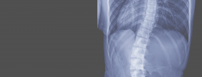 What is scoliosis and how we treat it.